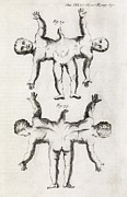 Transactions Framed Prints - Conjoined Twins, 18th Century Framed Print by Middle Temple Library
