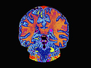 Brains Prints - Coronal View Mri Of Normal Brain Print by Medical Body Scans
