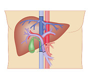 Problems Posters - Cross Section Biomedical Illustration Of Liver Transplant Procedure Poster by Dorling Kindersley