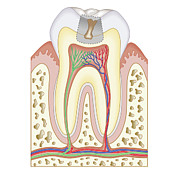 Problems Digital Art Metal Prints - Cross Section Biomedical Illustration Of Tooth Decay Before Dental Filling Metal Print by Dorling Kindersley