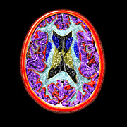 Human Brain Art - Cross-sectional Mri Of The Human Brain by Medical Body Scans