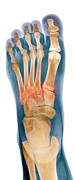 Crushed Posters - Crushed Broken Foot, X-ray Poster by