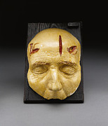 Visual Aid Prints - Death Mask, Incision, Laceration Print by Science Source