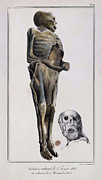 M Court Prints - Decomposition On Exhumed Bodies, 1831 Print by Science Source