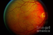 Diabetic Posters - Diabetic Retinopathy Poster by Science Source
