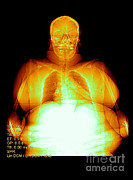Excessive Prints - Digital X-ray Of Obesity Print by Medical Body Scans
