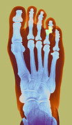 Human Joint Art - Dislocated Toe, X-ray by Du Cane Medical Imaging Ltd