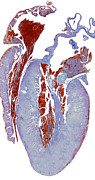 Heart Healthy Posters - Dissected Heart, Light Micrograph Poster by Steve Gschmeissner