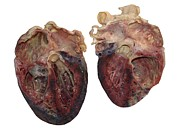 Grey Background Prints - Dissected Human Heart Print by Victor Habbick Visions