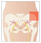 Buttock Prints - Dorsogluteal Injection Site, Artwork Print by Peter Gardiner