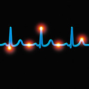 Contraction Posters - Ecg Of A Normal Heart Rate Poster by Mehau Kulyk
