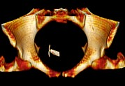 Fitted Framed Prints - Ectopic Iud Contraceptive, 3d Mri Scan Framed Print by Du Cane Medical Imaging Ltd