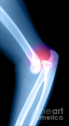 Injury Posters - Elbow Injury Poster by Medical Body Scans