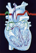 Contraction Photos - Electrical Conduction In The Heart, Artwork by John Bavosi
