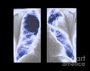 Xrays Posters - Emphysema Poster by Medical Body Scans