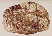 Law Enforcement Art Prints - Encircling Gunshot-wound In Brain, 1898 Print by Science Source