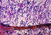 Candidiasis Posters - Endocarditis Caused By Candida Poster by Science Source