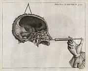 Human Condition Framed Prints - Eustachian Tube Syringing, 18th Century Framed Print by Middle Temple Library