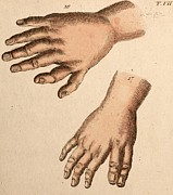 Boleyn Prints - Extra Fingers - Polydactyly Illustration Print by Paul D Stewart