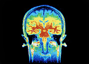 Nmr Brain Scan Prints - False-colour Nmr Scan Of The Head, Frontal Section Print by Cnri