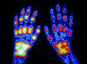 Arthritis Prints - False-colour Scintigram Of Arthritic Hands Print by Cnri