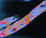 F/col Tem Of Mycobacterium Tuberculosis Print by Cnri