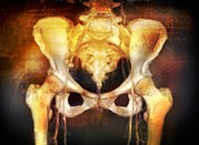 3-d Posters - Female Pelvis, Coloured 3-d Ct Scan Poster by Miriam Maslo