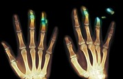 Fingertips Prints - Fingertip Laceration Injuries, X-rays Print by Du Cane Medical Imaging Ltd