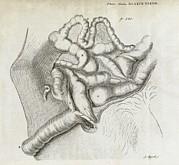 Adultc Prints - Fistula And Hernia, 18th Century Print by Middle Temple Library