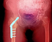 Metal Pin Posters - Fixed Hip And Fracture (image 1 Of 2) Poster by Du Cane Medical Imaging Ltd