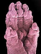 Toe Pad Framed Prints - Foetal Mouse Foot, Sem Framed Print by Steve Gschmeissner