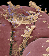 Small Intestine Posters - Food & Bacteria In The Ileum, Sem Poster by Steve Gschmeissner