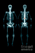 Isotopes Posters - Fracture Poster by Medical Body Scans