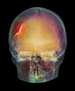 Depressed Posters - Fractured Skull, X-ray Poster by Pht