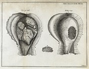 1751 Framed Prints - Fungal Bladder Infection, 18th Century Framed Print by Middle Temple Library