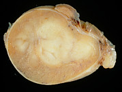 Cancer Art - Gross Specimen, Sectioned Testis With Seminoma. by Dr. E. Walker