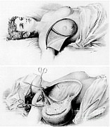 Antiseptic Prints - Halsted Radical Mastectomy, Incision Print by Science Source