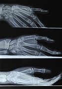 X-ray-x-ray Image Art - Hand X-ray by Sami Sarkis