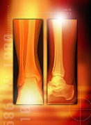 Mending Metal Prints - Healing Ankle Fracture, X-ray Metal Print by Miriam Maslo