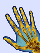Skeleton Hand Framed Prints - Healthy Adult Hand, X-ray Framed Print by