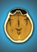 Brain Scan Prints - Healthy Brain And Frontal Sinus, Ct Scan Print by Miriam Maslo
