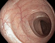 Endoscopy Photos - Healthy Colon, Large Intestine by Gastrolab
