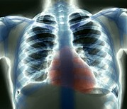 Heart Healthy Photo Posters - Healthy Heart And Lungs, X-ray Poster by Zephyr