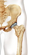 Human Joint Photos - Healthy Hip, Artwork by D & L Graphics
