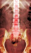 Old Person Framed Prints - Healthy Lower Spine, X-ray Framed Print by Du Cane Medical Imaging Ltd