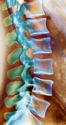 Ray Prints - Healthy Lower Spine X-Ray Print by SPL and Photo Researchers