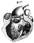 Pathological Framed Prints - Heart Anatomy, Carl Von Rokitansky, 1875 Framed Print by Science Source