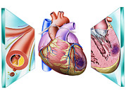 Vascular Condition Posters - Heart Attack Poster by John Bavosi