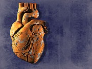 Biomedical Illustration Art - Heart Disease, Conceptual Artwork by Laguna Design
