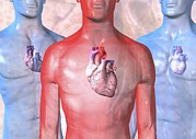 Heart Failure, Artwork Print by David Mack